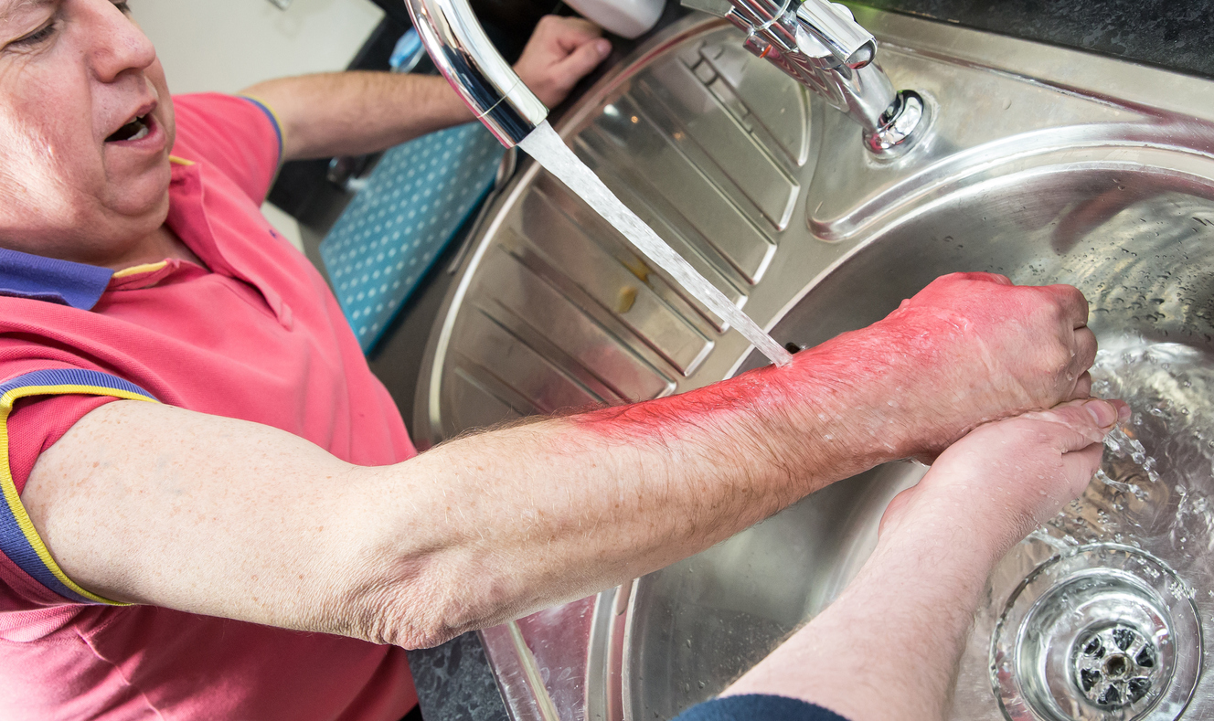 วิธีปฐมพยาบาล เมื่อถูกไฟไหม้ น้ำร้อนลวก